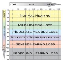 hearing-loss-severity
