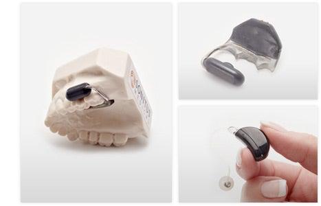 soundbite-hearing-system