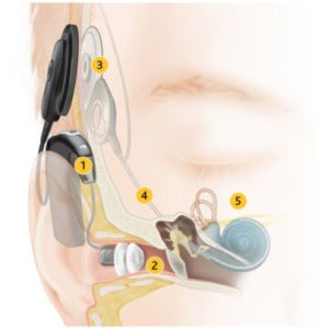 NucleusCochlearhybridimplant-how-it-works-290x300