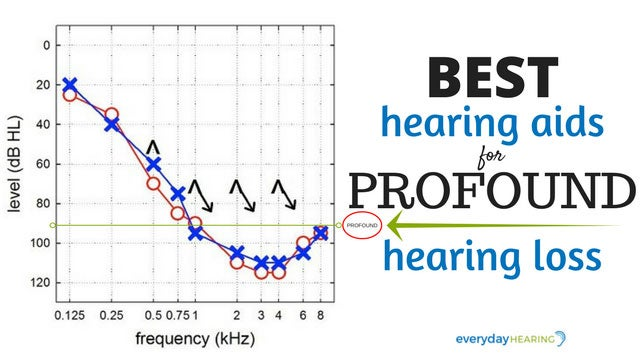 best-hearing-aids-profound-hearing-loss