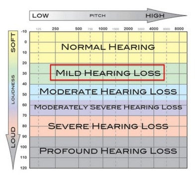 a chart showing the levels of hearing loss